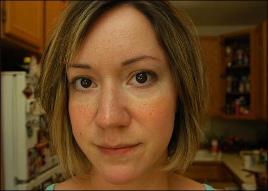 Okay, weu2019ve got eye circles, blotchy redness, and a retarded ...
